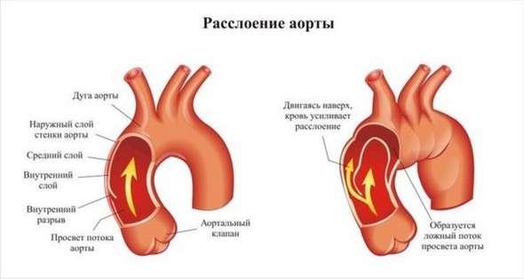 Аневризма, аневризма аорти: симптоми і лікування