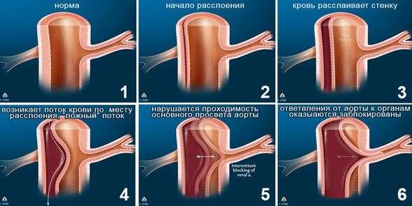 Розшарування аорти: симптоми і лікування