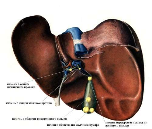 Печінкова коліка: симптоми і лікування