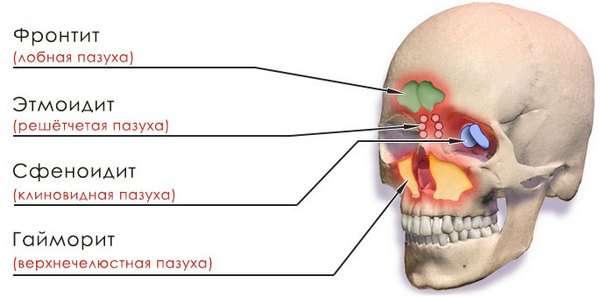 Хронічний синусит: симптоми і лікування