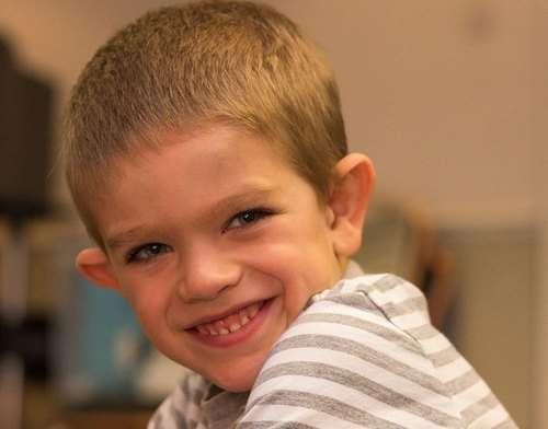 Синдром Мартіна-Белл: симптоми і лікування