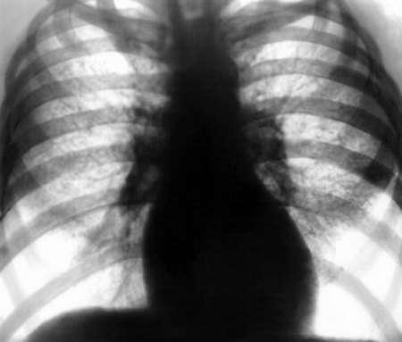 Пневмоконіоз: симптоми і лікування