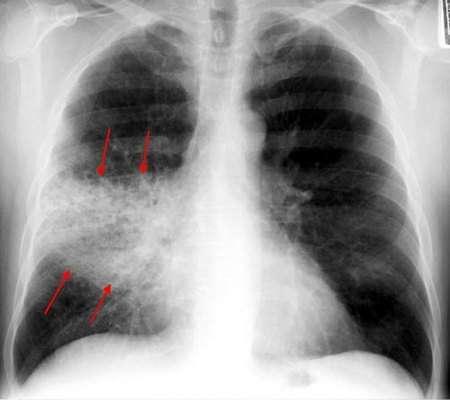 Крупозна пневмонія: симптоми і лікування