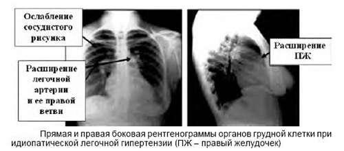 Легенева гіпертензія: симптоми і лікування