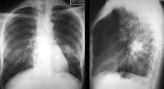 Вогнищева пневмонія: симптоми і лікування