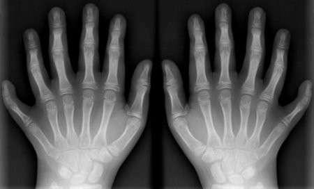 Полідактилія: симптоми і лікування