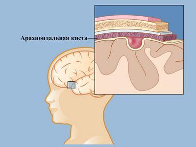 Ретроцеребеллярная арахноідальной кіста: симптоми і лікування