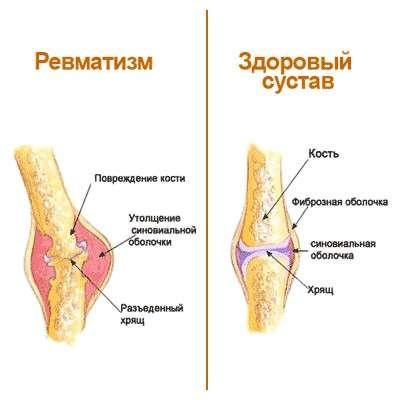 Ревматизм: симптоми і лікування