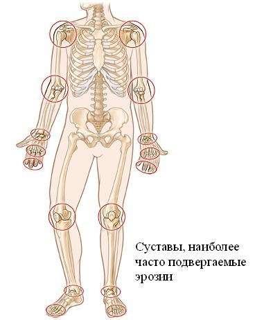 Ревматоїдний артрит: симптоми і лікування