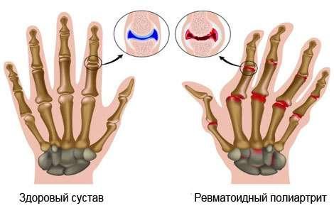 Ревматоїдний поліартрит: симптоми і лікування