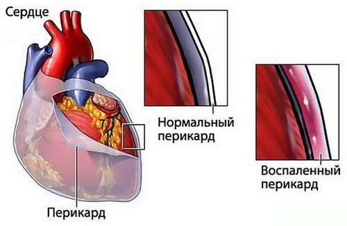 Ревмокардит: симптоми і лікування