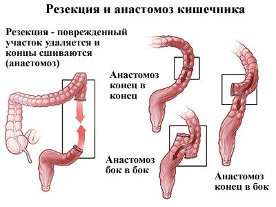 Трансверзоптоз: симптоми і лікування