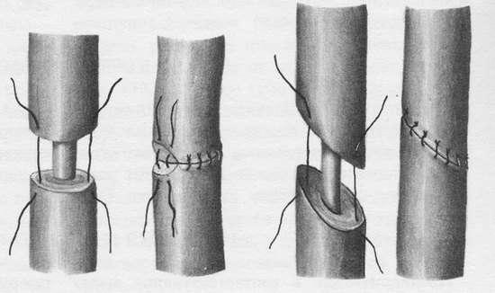 Уретерогидронефроз: симптоми і лікування