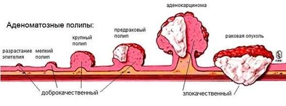Поліпоз: симптоми і лікування