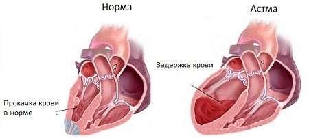 Серцева астма: симптоми і лікування