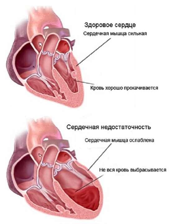 Серцева недостатність: симптоми і лікування