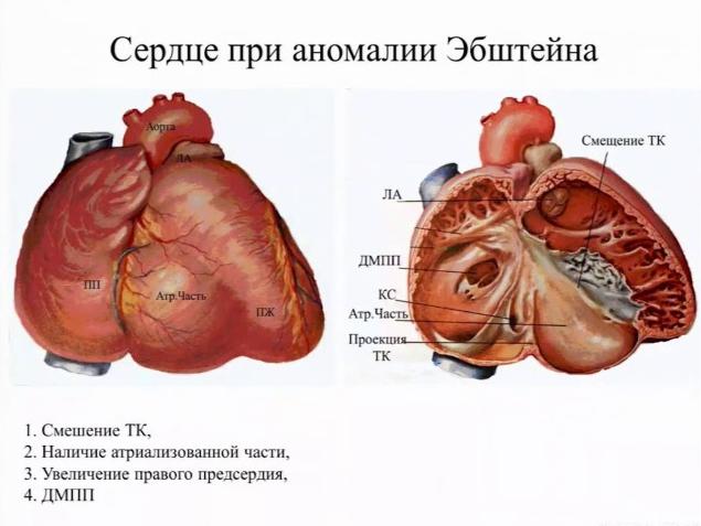 Аномалія Ебштейна: симптоми і лікування