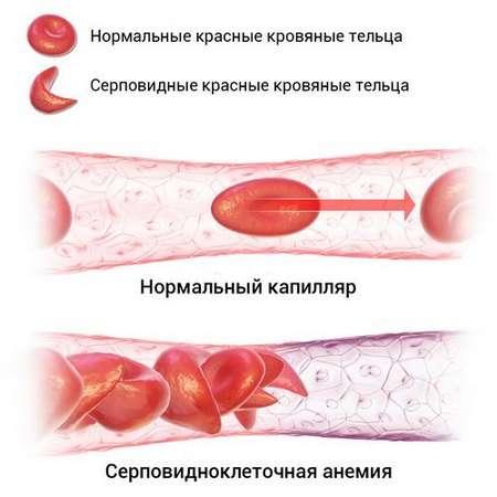 Гемолітична анемія: симптоми і лікування