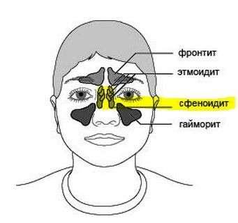 Сфеноидит: симптоми і лікування