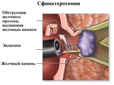 Постхолецистектомічний синдром: симптоми і лікування