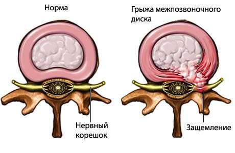 Грижа шийного відділу хребта: симптоми і лікування