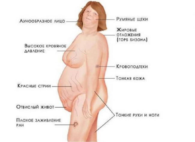 Аденома наднирника: симптоми і лікування
