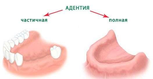Адентія: симптоми і лікування