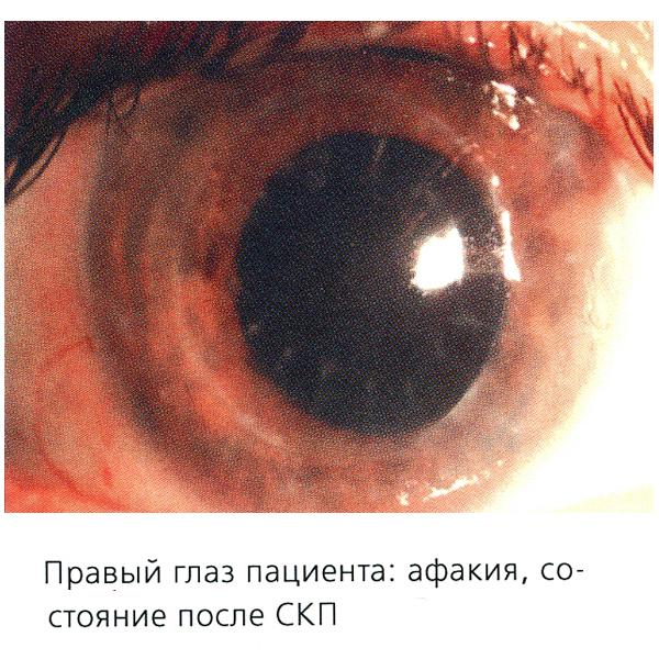 Афакія: симптоми і лікування