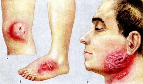 Актіномікоз: симптоми і лікування