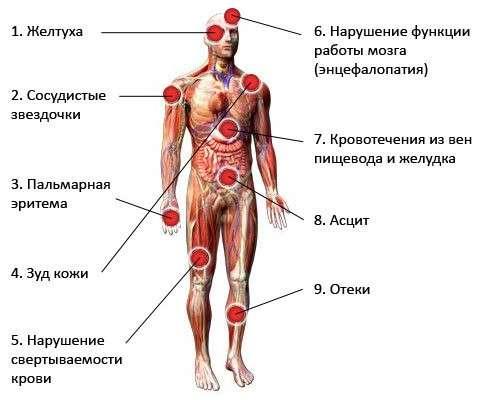 Алкогольний цироз печінки: симптоми і лікування