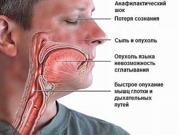 Анафілактичний шок: симптоми і лікування