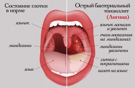 Ангіна у дітей: симптоми і лікування