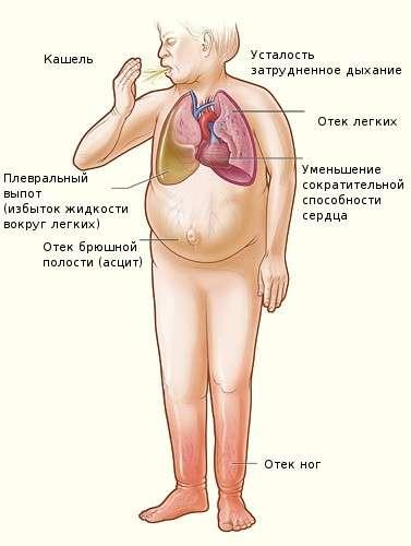 Асцит: симптоми і лікування
