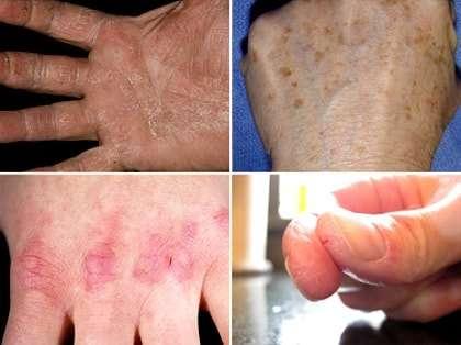 Авітаміноз: симптоми і лікування