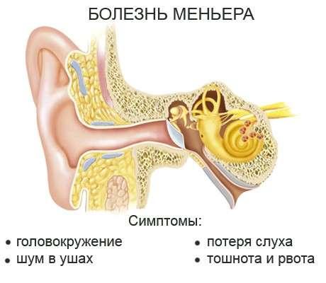 Хвороба Меньєра: симптоми і лікування