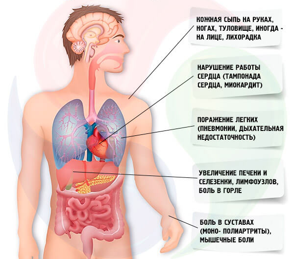 Хвороба Стілла: симптоми і лікування