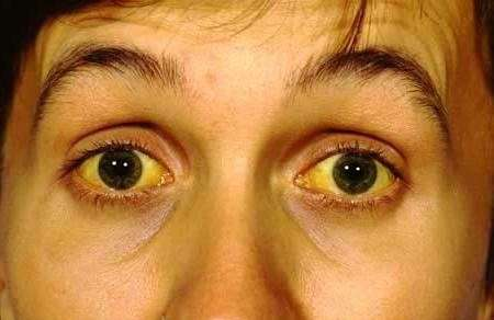 Хвороба Вільсона-Коновалова: симптоми і лікування