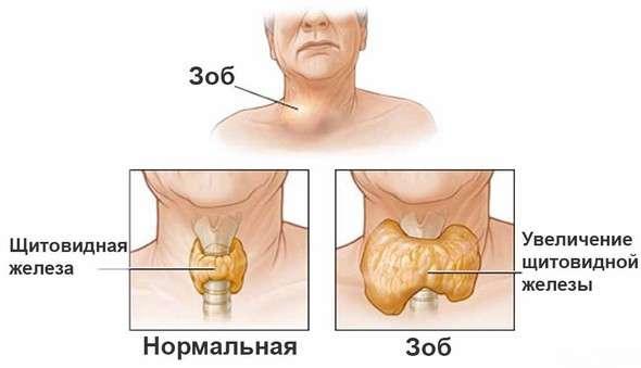 Дифузний токсичний зоб: симптоми і лікування