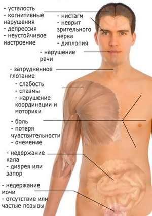 Енцефаломієліт: симптоми і лікування