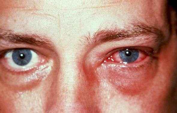 Эписклерит: симптоми і лікування