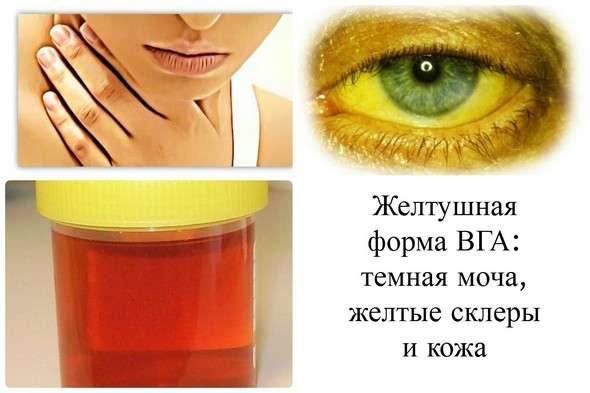 Гепатит А (хвороба Боткіна): симптоми і лікування