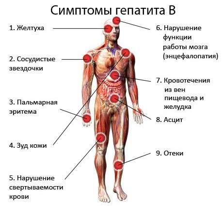 Гепатит В: симптоми і лікування