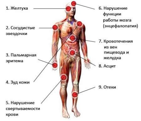 Гепатит D: симптоми і лікування