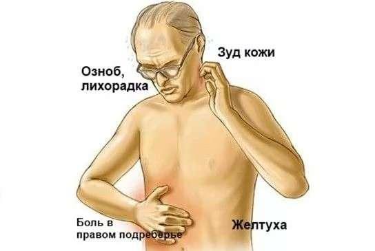 Гепатит G: симптоми і лікування