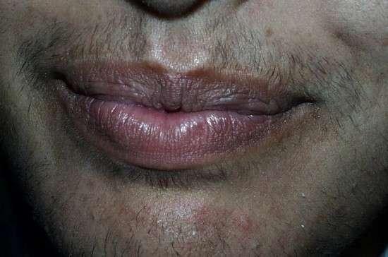Гіперандрогенія: симптоми і лікування
