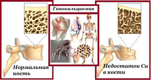 Гіпокальціємія: симптоми і лікування