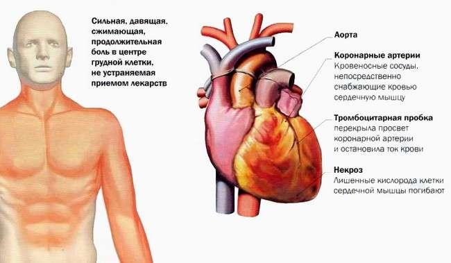 Інфаркт міокарда: симптоми і лікування