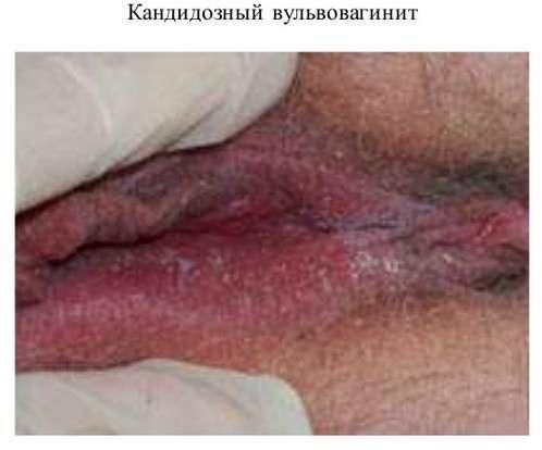 Кандидозний вульвовагініт: симптоми і лікування