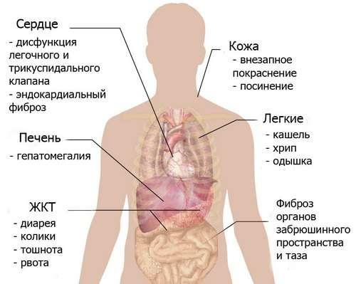 Карциноїдний синдром: симптоми і лікування