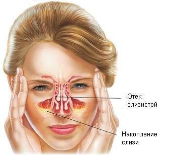 Катаральний гайморит: симптоми і лікування